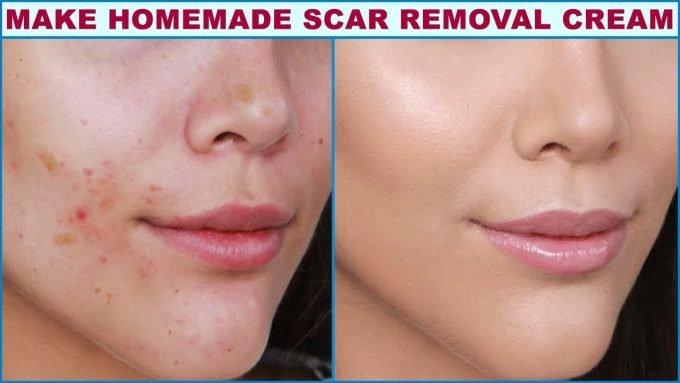 Scar Removal Cream